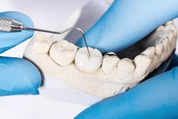 terceros-molares
