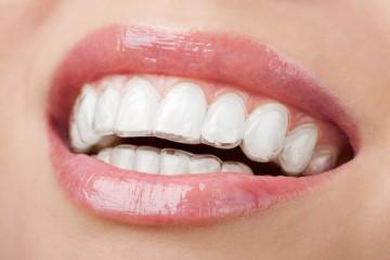 ortodoncia-invisible-murcia-precio
