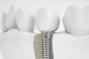 implante-dental-murcia-precio