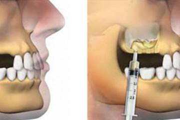 elevaciones-de-seno-maxilar-murcia