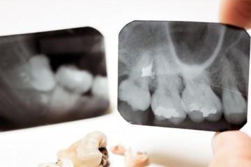 quistes-de-hueso-cirugia-maxilofacial