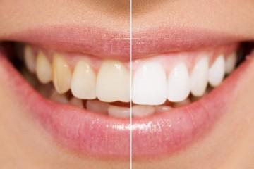 blanqueamiento-dental-murcia-precio