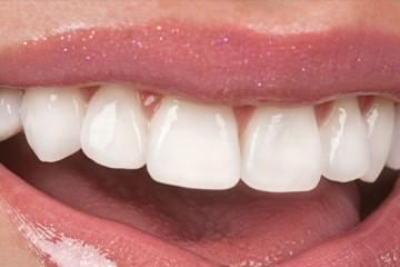 carillas-de-porcelana-dentales-murcia